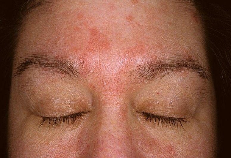 best of Masturbate Seborrheic dermatitis