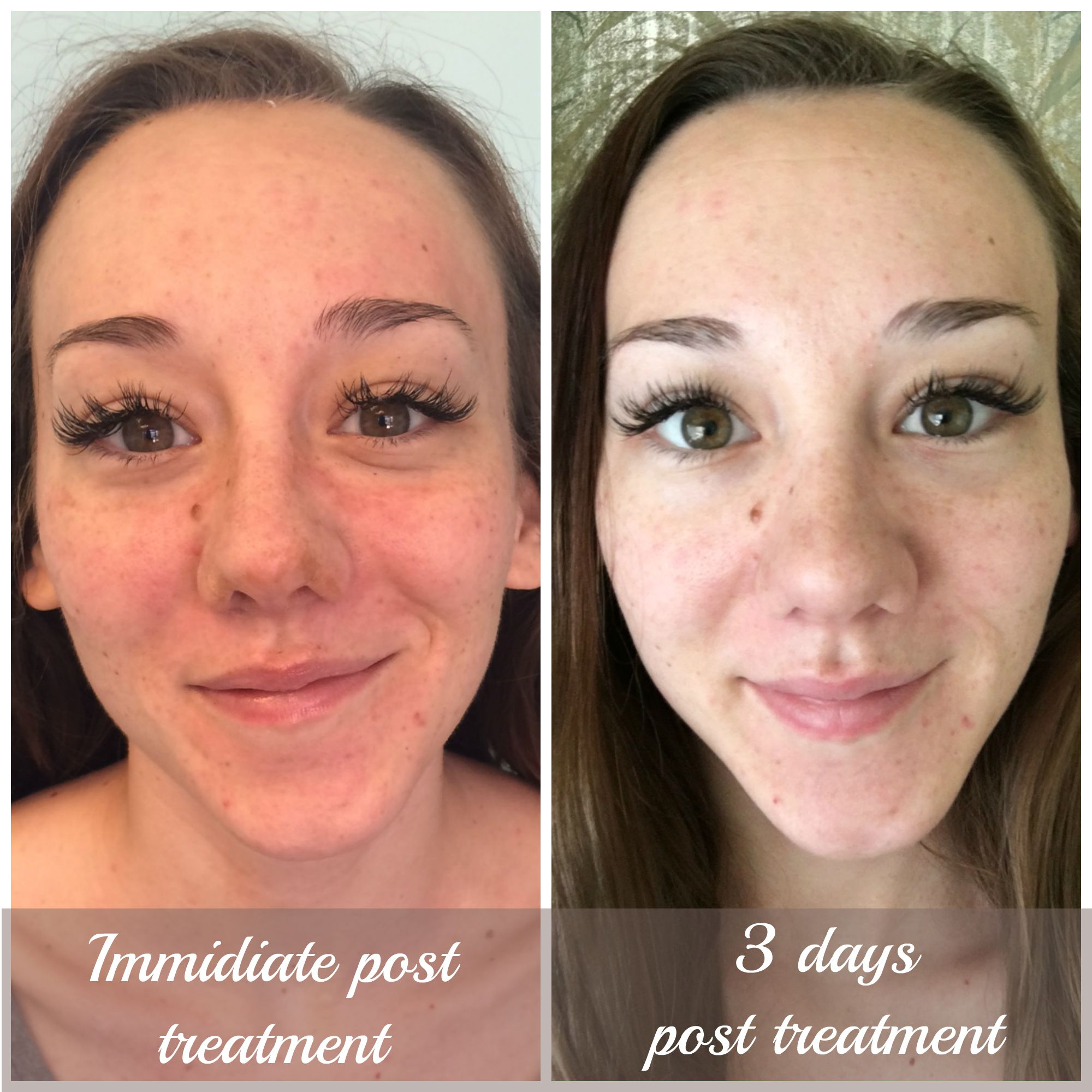 Facial before and after photos