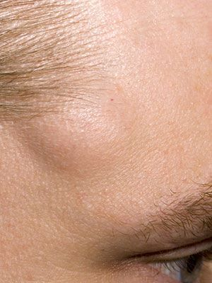 Facial cyst lump