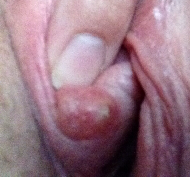 Frog reccomend Clit bump pictures