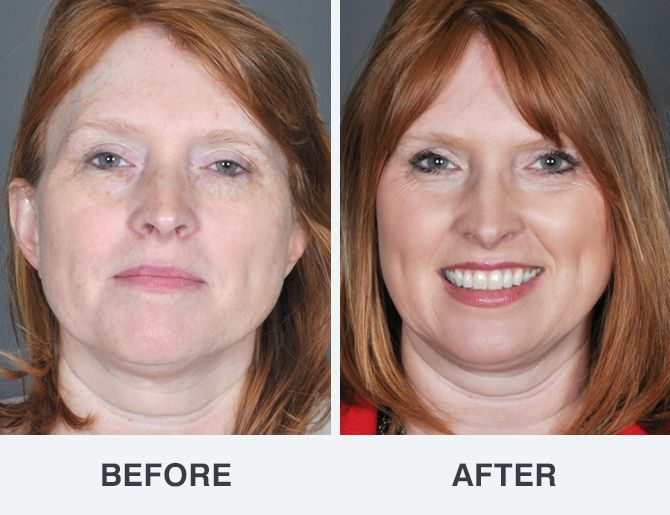 best of Before photos after Facial and