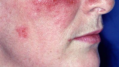 Lupus in adults