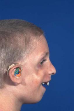 Dreads reccomend Venous cranial facial syndrome