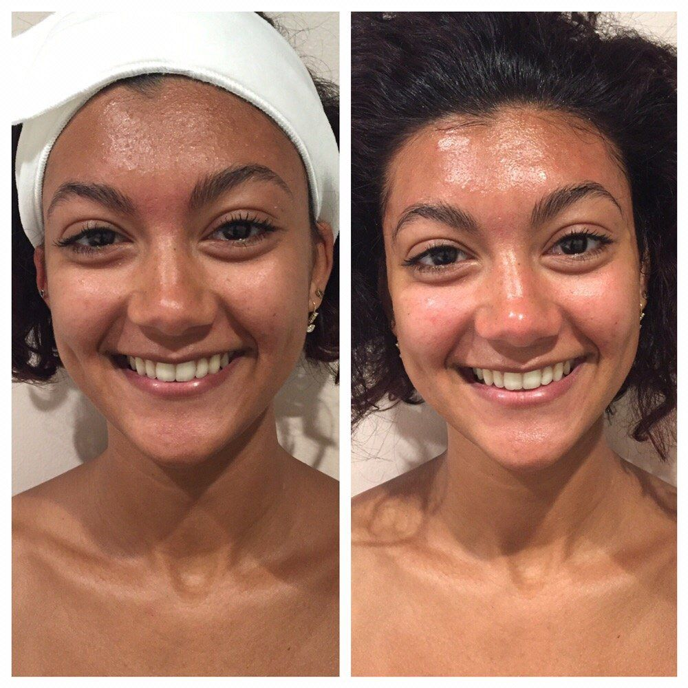 Sneak reccomend Facial before and after photos