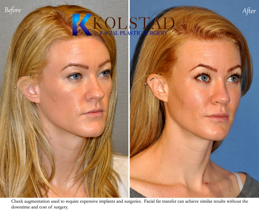 Facial fat implants