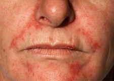 Seborrheic dermatitis masturbate
